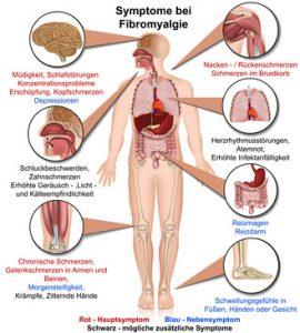 Erfahrungen mit CBD bei Fibromyalgie