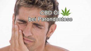 cbd öl bei parodontose